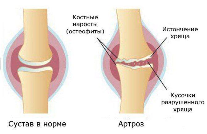 Прессотерапия при артрозе коленных суставов лечебные пластыри для суставов из кореи