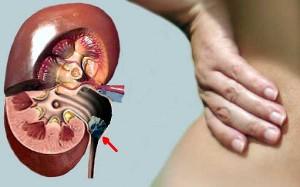 Лечение мочекаменной болезни, удаление камней в диагностическом центре «Возрождение здоровья»
