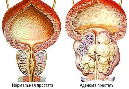 Мужской хронический простатита