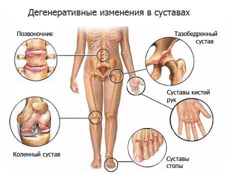 Лечение Артрит Ревматоидный  Диагностика всего организма  быстро,точно( 93%),безвредно.Лечение без лекарств, безопасно; эффективно(85%) в многопрофильном диагностическом центре