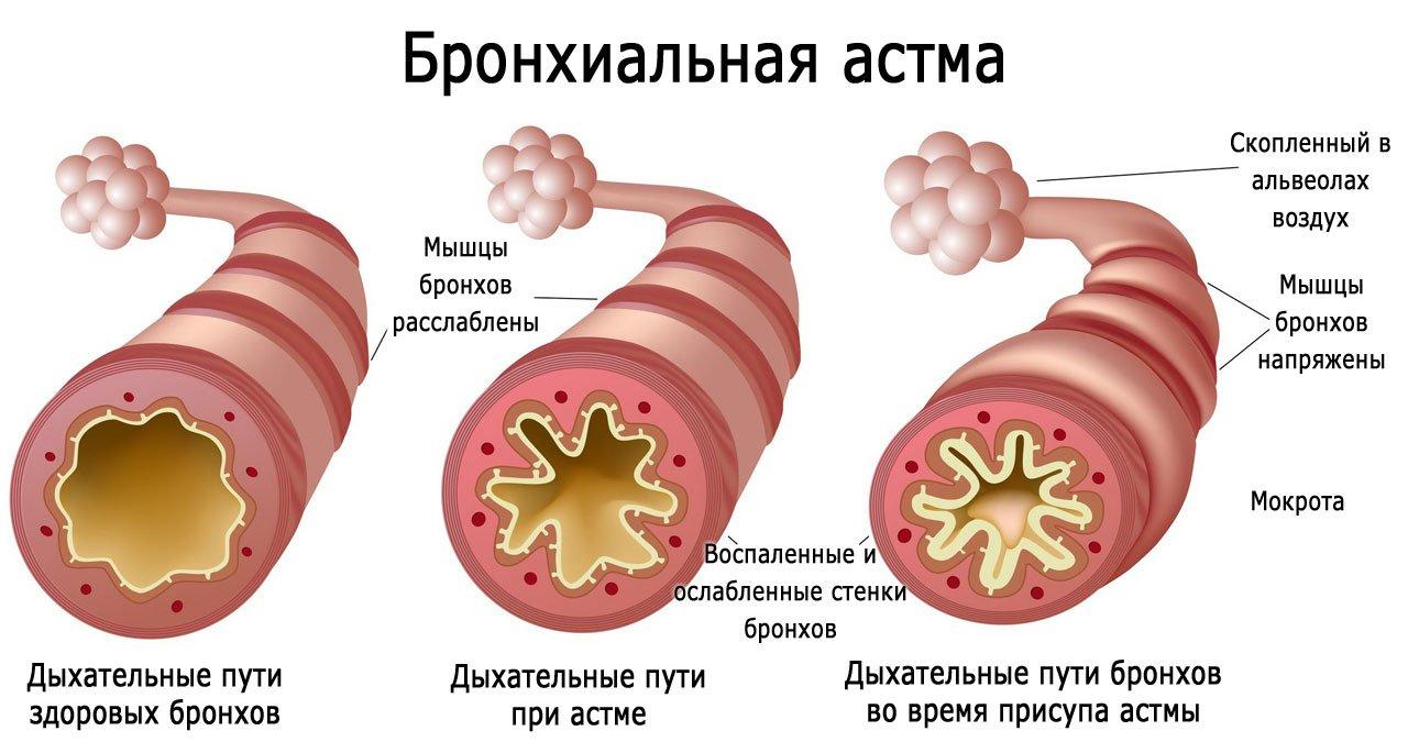 Бронхиальная астма  как развивается