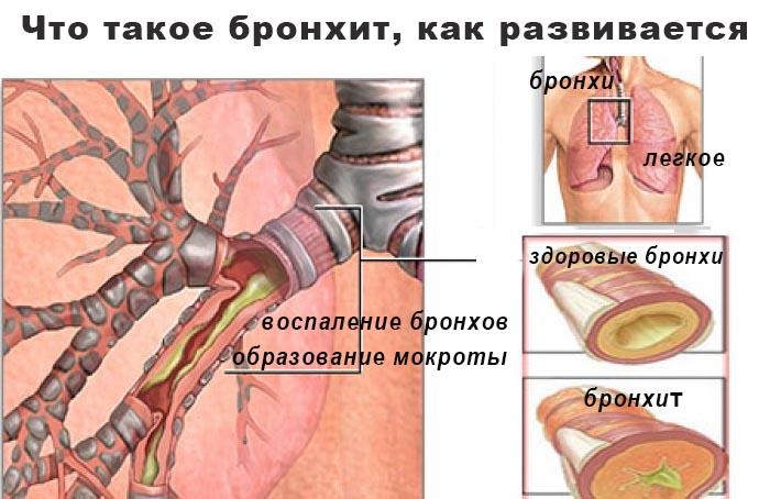 Что такое бронхит, как он развивается, как лечить бронхит