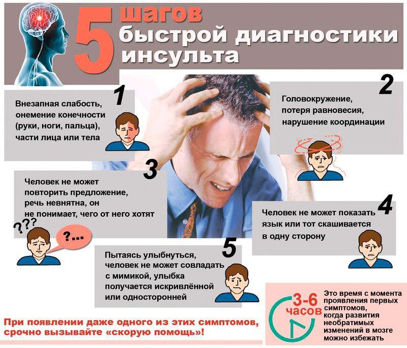 5 шагов быстрой диагностики инсульта