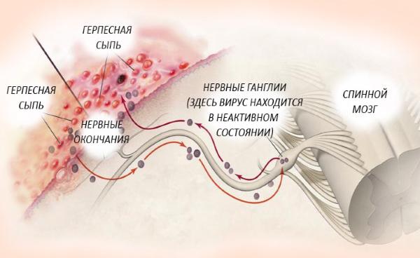 Жизнь вируса герпес в организме человека