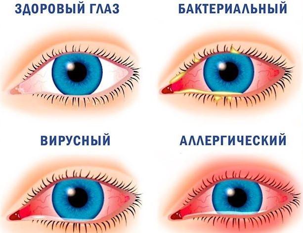 Конъюнктивит лечение в центре Возрождение здоровья Киев