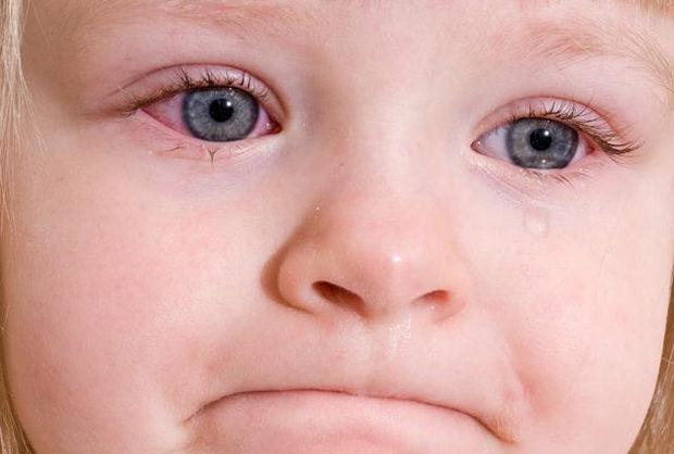 Конъюнктивит у ребенка лечение в центре Возрождение здоровья Киев